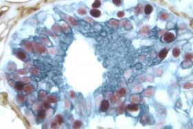 Product - Breast Carcinoma (triple label): Estrogen Receptor (m); VECTASTAIN® Elite® ABC Kit, Vector® NovaRED® substrate (red); CD34 (m), VECTASTAIN® Elite® ABC Kit, DAB substrate (brown); Cytokeratin 8/18 (m), VECTASTAIN® Elite® ABC Kit, Vector® SG substrate (blue/gray).