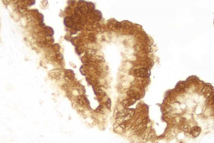 Paraffin embedded human prostate tissue stained using rabbit anti-prostate specific antigen labeled with the ProtOn Biotin Labeling Kit and detected with VECTASTAIN® Elite® ABC Reagent and Vector® DAB substrate.