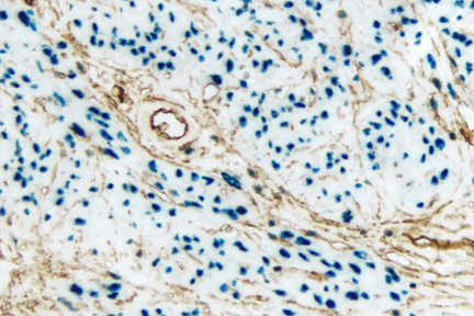 Endometrium (double label): Progesterone Receptor (rm), VECTASTAIN® Universal ABC-AP Kit, Vector Blue™ substrate (blue); CD34 (m), VECTASTAIN® Universal Elite® ABC Kit, DAB substrate (brown).