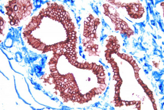 Breast Cancer (double Label): Epithelium (red, Vector® NovaRED), endothelium (blue, Vector® Blue).