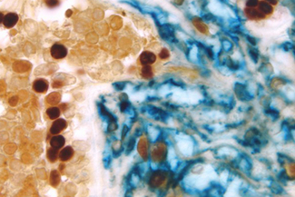 Breast Carcinoma (triple label): Estrogen Receptor (m), VECTASTAIN® Elite® ABC Kit, Vector® NovaRED® substrate (red); CD34 (m), VECTASTAIN® ABC-AP Kit, Vector Blue™ substrate (blue); Cytokeratin 8/18 (m), VECTASTAIN® Elite® ABC Kit, DAB substrate (brown).
