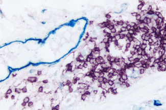 Colon (double label): M2A antigen (m), VECTASTAIN® ABC-AP Kit (Universal), Vector Blue™ (blue). CD20 (m), ImmPRESS™ Reagent (HRP, Universal), Vector® VIP (purple).
