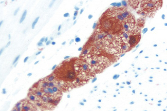 Colon: PGP 9.5 (m), ImmPRESS™ Anti-Mouse Ig Kit, ImmPACT™ AEC (red) substrate. Hematoxylin QS (blue) counterstain.