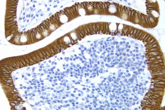 Small Bowel: Cytokeratin 8/18 (m), ImmPRESS™ Anti-Mouse Ig Kit, DAB Substrate Kit (brown), Hematoxylin QS (blue).