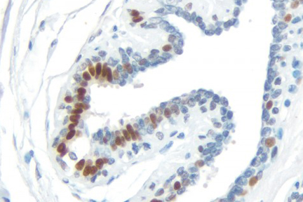 Product - Breast Carcinoma: Progesterone Receptor (rm), ImmPRESS™ Universal Antibody Kit, DAB Substrate Kit (brown). Hematoxylin QS counterstain (blue).