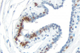 Breast Carcinoma: Progesterone Receptor (rm), ImmPRESS™ Universal Antibody Kit, DAB Substrate Kit (brown). Hematoxylin QS counterstain (blue).