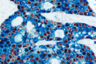 Breast Carcinoma (double label): Estrogen Receptor (m), ImmPRESS™ Universal Reagent, Vector® NovaRED® substrate (red); Cytokeratin 8/18 (m), VECTASTAIN® Universal ABC-AP Kit, Vector Blue™ substrate (blue).