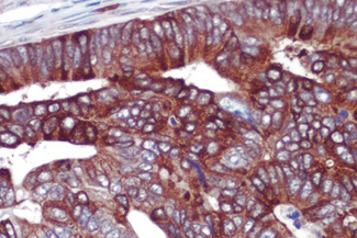 Colon cancer: COX-2 rabbit monoclonal antibody detected with ImmPRESS™ Universal Reagent and Vector® NovaRED® substrate (red). Hematoxylin QS counterstain (blue). Formalin-fixed, paraffin embedded tissue section.