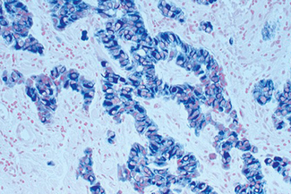 Tumor tissue section showing specific cytoplasmic cell staining (blue/gray, Vector® SG) with Vector® Nuclear Fast Red (red) counterstain.