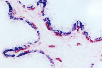 Prostate (double label): Cytokeratin (m), VECTASTAIN® ABC-AP Kit, Vector Blue™ (blue) substrate. CD34, VECTASTAIN® ABC-AP Kit, Vector Red™ (red) substrate.