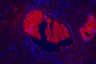 Prostate: Prostate Specific Antigen (rp) labeled with fluorescein using the ProtOn Fluorescein Labeling Kit. Fluorescein label detected with Alkaline Phosphatase Anti-Fluorescein and visualized with Vector® Red. Mounted in VECTASHIELD® HardSet Mounting Media.