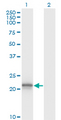 Western Blot analysis of VHL expression in transfected 293T cell line by VHL monoclonal antibody (M01), clone 1G12.Lane 1: VHL transfected lysate(19.7 KDa).Lane 2: Non-transfected lysate.