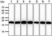The cell lysates (40ug) were resolved by SDS-PAGE, transferred to PVDF membrane and probed with anti-human VHL antibody (1:1000). Proteins were visualized using a goat anti-mouse secondary antibody conjugated to HRP and an ECL detection system. Lane 1.: HepG2 cell lysate Lane 2.: HeLa cell lysate Lane 3.: Raji cell lysate Lane 4.: Jurkat cell lysate Lane 5.: A549 cell lysate Lane 6.: MCF7 cell lysate Lane 7.: PC3 cell lysate