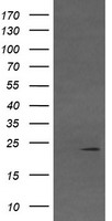 VHL / Von Hippel Lindau Antibody - HEK293T cells were transfected with the pCMV6-ENTRY control (Left lane) or pCMV6-ENTRY VHL (Right lane) cDNA for 48 hrs and lysed. Equivalent amounts of cell lysates (5 ug per lane) were separated by SDS-PAGE and immunoblotted with anti-VHL.