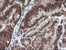 VHL / Von Hippel Lindau Antibody - IHC of paraffin-embedded Adenocarcinoma of Human colon tissue using anti-VHL mouse monoclonal antibody.