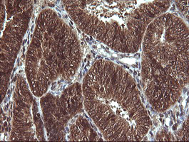VHL / Von Hippel Lindau Antibody - IHC of paraffin-embedded Adenocarcinoma of Human endometrium tissue using anti-VHL mouse monoclonal antibody.
