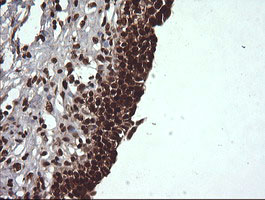 VHL / Von Hippel Lindau Antibody - IHC of paraffin-embedded Human bladder tissue using anti-VHL mouse monoclonal antibody.