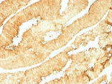 IHC testing of FFPE human colon with Villin antibody (clone VIL1/1314). Required HIER: boil tissue sections in 10mM citrate buffer, pH 6, for 10-20 min followed by cooling at RT for 20 min.