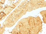 IHC testing of FFPE human colon with Villin antibody (clone VIL1/1325). Required HIER: boil tissue sections in 10mM citrate buffer, pH 6, for 10-20 min followed by cooling at RT for 20 min.
