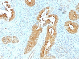 IHC testing of FFPE human rectum tissue with Villin antibody (clone VIL1/1325). Required HIER: boil tissue sections in 10mM citrate buffer, pH 6, for 10-20 min followed by cooling at RT for 20 min.