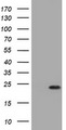 HEK293T cells were transfected with the pCMV6-ENTRY control (Left lane) or pCMV6-ENTRY VSNL1 (Right lane) cDNA for 48 hrs and lysed. Equivalent amounts of cell lysates (5 ug per lane) were separated by SDS-PAGE and immunoblotted with anti-VSNL1.