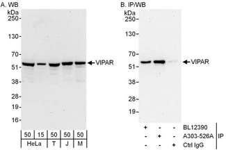 Detection of Human and Mouse VIPAR by Western Blot (h and m) and Immunoprecipitation (h). Samples: Whole cell lysate from HeLa (15 and 50 ug for WB; 1 mg for IP, 20% of IP loaded), 293T (T; 50 ug), Jurkat (J; 50 ug) and mouse NIH3T3 (M; 50 ug) cells. Antibodies: Affinity purified rabbit anti-VIPAR antibody used for WB at 0.1 ug/ml (A) and 1 ug/ml (B) and used for IP at 6 ug/mg lysate. VIPAR was also immunoprecipitated by rabbit anti-VIPAR antibody BL12390, which recognizes an upstream epitope. Detection: Chemiluminescence with exposure times of 30 seconds (A and B).