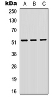 Western blot analysis of VIPR1 expression in A549 (A); H9C2 (B); Raw264.7 (C) whole cell lysates.