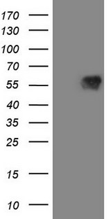 VISA / MAVS Antibody - HEK293T cells were transfected with the pCMV6-ENTRY control. (Left lane) or pCMV6-ENTRY MAVS. (Right lane) cDNA for 48 hrs and lysed