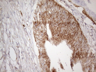 VISA / MAVS Antibody - Immunohistochemical staining of paraffin-embedded Adenocarcinoma of Human colon tissue using anti-MAVS mouse monoclonal antibody. (Heat-induced epitope retrieval by 1mM EDTA in 10mM Tris buffer. (pH8.5) at 120°C for 3 min. (1:150)