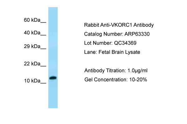 VKORC1 Antibody -  This image was taken for the unconjugated form of this product. Other forms have not been tested.