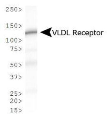 Western Blot: VLDL Receptor Antibody (6A6) - Analysis of VLDL Receptor expression in mouse kidney.  This image was taken for the unconjugated form of this product. Other forms have not been tested.