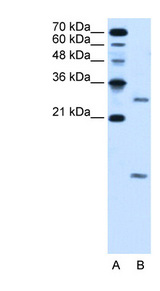 VMA21 antibody LS-C40497 Western blot of HepG2 cell lysate.  This image was taken for the unconjugated form of this product. Other forms have not been tested.