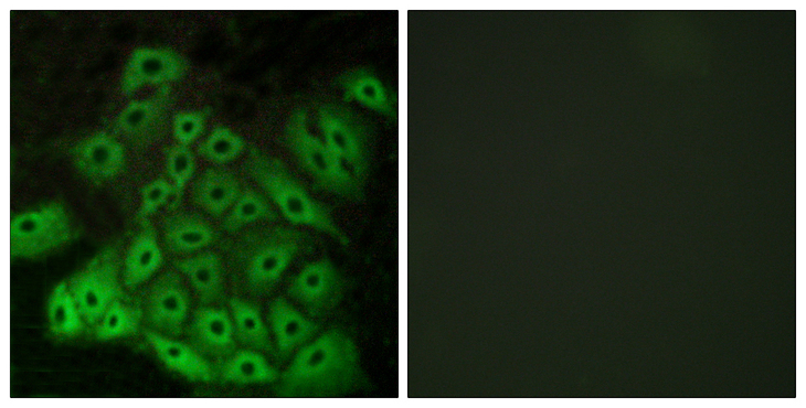VN2R1P Antibody - Immunofluorescence analysis of A549 cells, using CSRL1 Antibody. The picture on the right is blocked with the synthesized peptide.