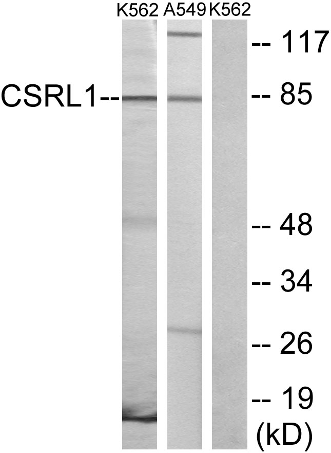 VN2R1P Antibody - Western blot analysis of lysates from K562 cells and A549 cells, using CSRL1 Antibody. The lane on the right is blocked with the synthesized peptide.