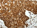 Immunohistochemistry of Human lung cancer using SCN1A/2A/3A/4A/5A/8A/9A/10A/11A/12A Polyclonal Antibody at dilution of 1:40.