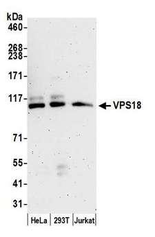 VPS18 Antibody - Detection of human VPS18 by western blot. Samples: Whole cell lysate (15 µg) from HeLa, HEK293T, and Jurkat cells prepared using NETN lysis buffer. Antibody: Affinity purified rabbit anti-VPS18 antibody used for WB at 0.1 µg/ml. Detection: Chemiluminescence with an exposure time of 3 minutes.