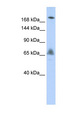 VPS8 antibody Western blot of HepG2 cell lysate. This image was taken for the unconjugated form of this product. Other forms have not been tested.
