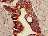 Immunohistochemistry of paraffin-embedded human colon cancer using TRPV1 Antibody at dilution of 1:100