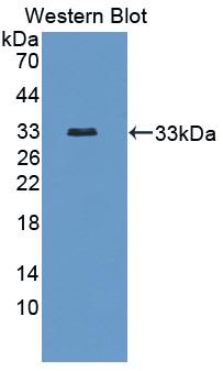 VRL1 / TRPV2 Antibody - Western blot of VRL1 / TRPV2 antibody using recombinant protein.