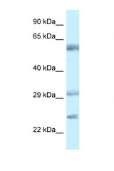 VSIG10 / FLJ20674 antibody LS-B8189 Western blot of 1 Cell lysate. Antibody concentration 1 ug/ml.  This image was taken for the unconjugated form of this product. Other forms have not been tested.