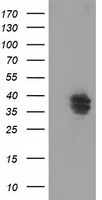 VSIG2 Antibody - HEK293T cells were transfected with the pCMV6-ENTRY control (Left lane) or pCMV6-ENTRY VSIG2 (Right lane) cDNA for 48 hrs and lysed. Equivalent amounts of cell lysates (5 ug per lane) were separated by SDS-PAGE and immunoblotted with anti-VSIG2.