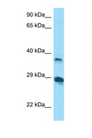 VSIG4 Antibody - VSIG4 antibody Western blot of COL0205 Cell lysate. Antibody concentration 1 ug/ml.  This image was taken for the unconjugated form of this product. Other forms have not been tested.