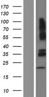 VSIG4 Protein - Western validation with an anti-DDK antibody * L: Control HEK293 lysate R: Over-expression lysate