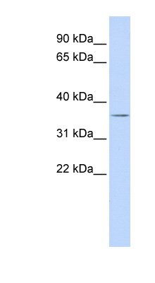 VSX1 antibody LS-C101578 Western blot of Fetal liver lysate.  This image was taken for the unconjugated form of this product. Other forms have not been tested.