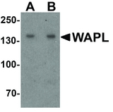 Western blot analysis of WAPL in A20 cell lysate with WAPL antibody at (A) 1 and (B) 2 ug/ml.