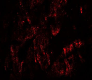 Immunofluorescence of WAPL in rat heart tissue with WAPL antibody at 20 ug/mL.