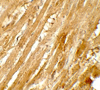 Immunohistochemistry of WAPL in rat heart tissue with WAPL antibody at 5 ug/mL.