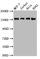 WAPAL / WAPL Antibody - Western Blot Positive WB detected in: Jurkat whole cell lysate, Hela whole cell lysate All lanes: WAPL antibody at 2.5µg/ml Secondary Goat polyclonal to rabbit IgG at 1/50000 dilution Predicted band size: 133, 138, 143 kDa Observed band size: 133 kDa
