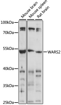 WARS2 Antibody - Western blot analysis of extracts of various cell lines, using WARS2 antibody at 1:1000 dilution. The secondary antibody used was an HRP Goat Anti-Rabbit IgG (H+L) at 1:10000 dilution. Lysates were loaded 25ug per lane and 3% nonfat dry milk in TBST was used for blocking. An ECL Kit was used for detection and the exposure time was 30s.
