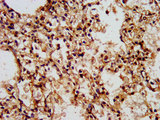 Immunohistochemistry image at a dilution of 1:500 and staining in paraffin-embedded human lung tissue performed on a Leica BondTM system. After dewaxing and hydration, antigen retrieval was mediated by high pressure in a citrate buffer (pH 6.0) . Section was blocked with 10% normal goat serum 30min at RT. Then primary antibody (1% BSA) was incubated at 4 °C overnight. The primary is detected by a biotinylated secondary antibody and visualized using an HRP conjugated SP system.
